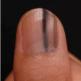 爪が変色していたら要注意!皮膚科で見てもらおう。